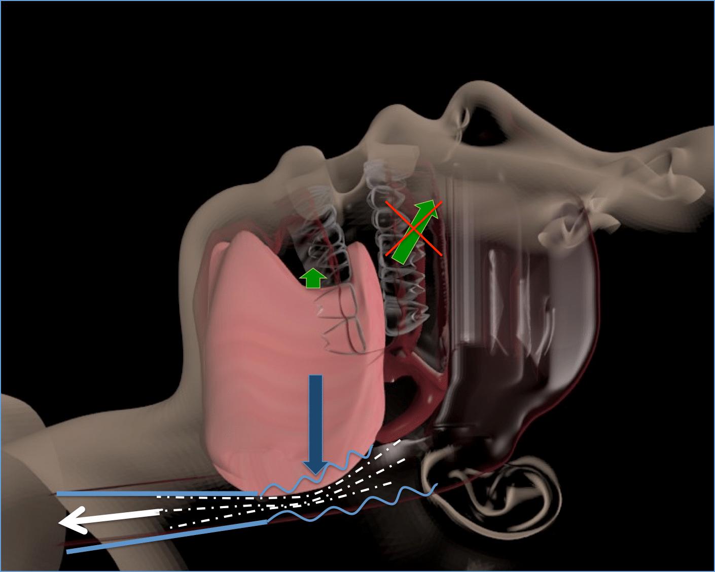 L'affaissement de la langue provoque un collapsus partiel ou total du pharynx.
